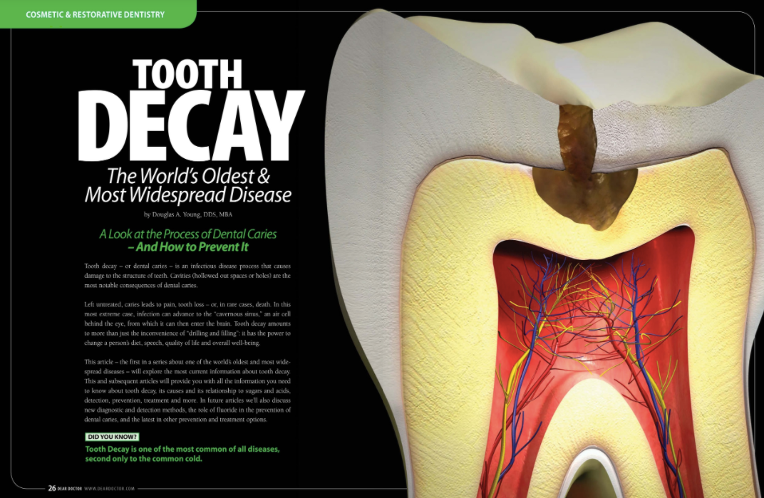 Tooth decay treatment in portage