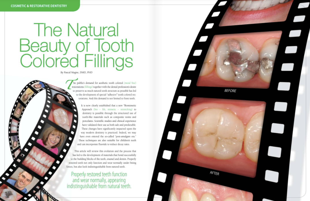 tooth-colored fillings in portage