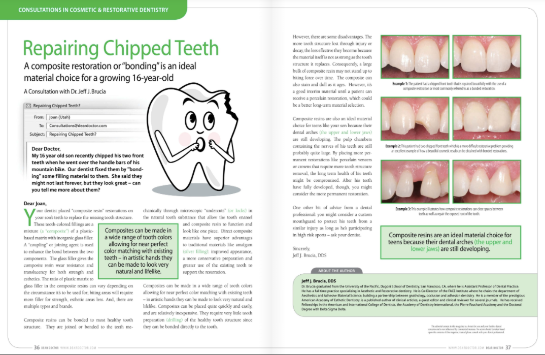 chipped teeth treatment in portage