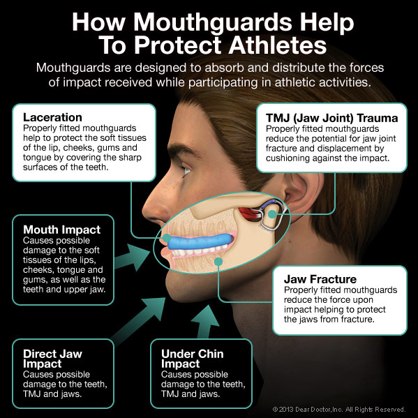 Mouthguards for children in portage