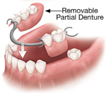 removable partial denture in portage