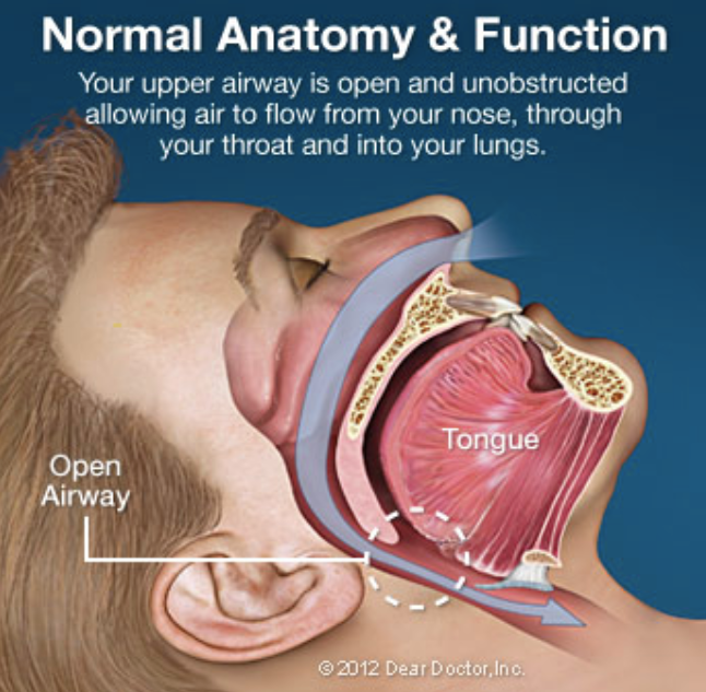 Snoring treatment in portage