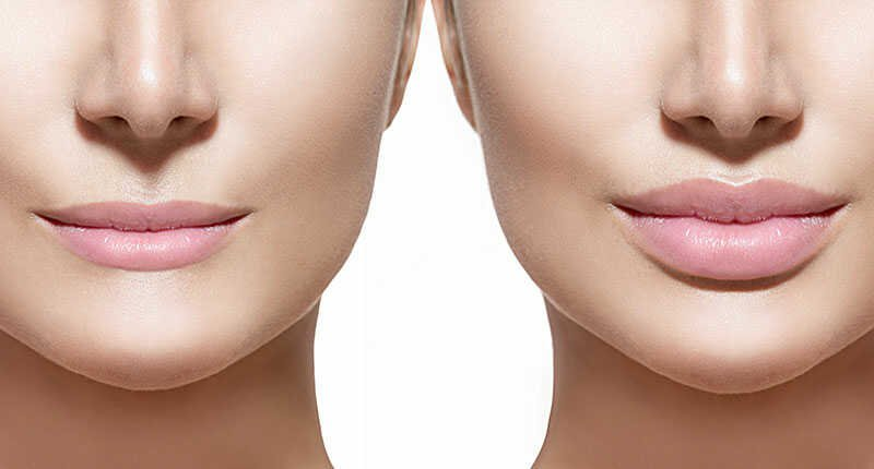 Feel Great Lip Filler Treatment For plump Lips at VIP Cosmetics Lounge Beauty Salon