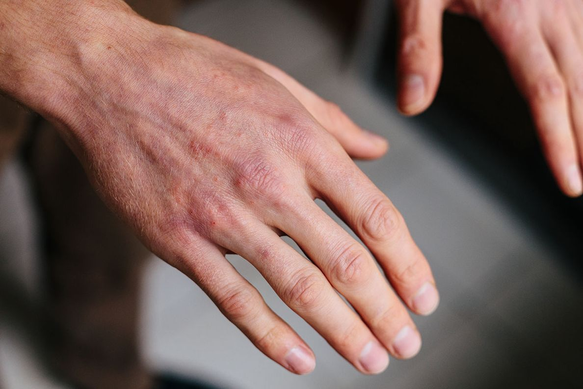 Close-up picture of hand with psoriasis.
